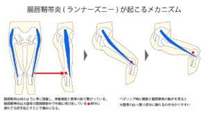 腸脛靭帯炎(ランナーズニー)が起こるメカニズム