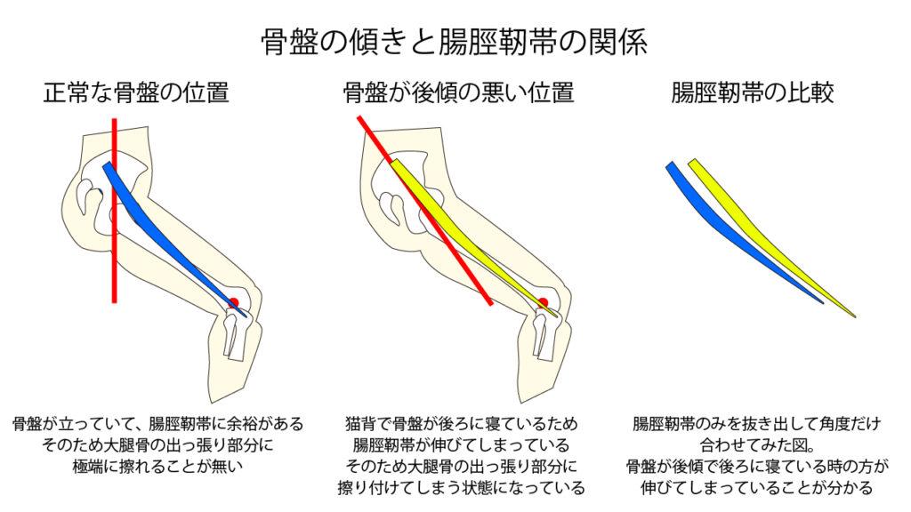 骨盤の傾きと腸脛靭帯の関係