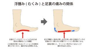浮腫みと足の痛みの関係